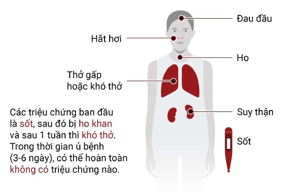 Kết quả hình ảnh cho virut corana
